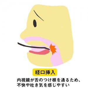 内視鏡が舌のつけ根を通るため、不快や吐き気を感じやすい