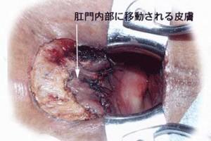 裂肛手術:途中