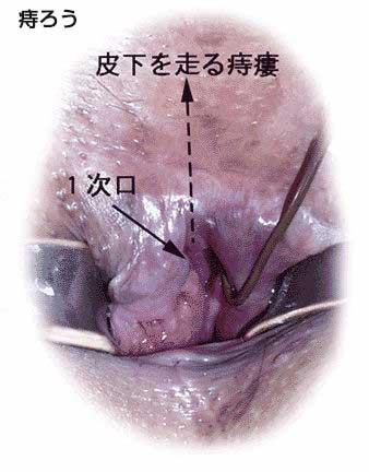 痔 ろう 手術 後