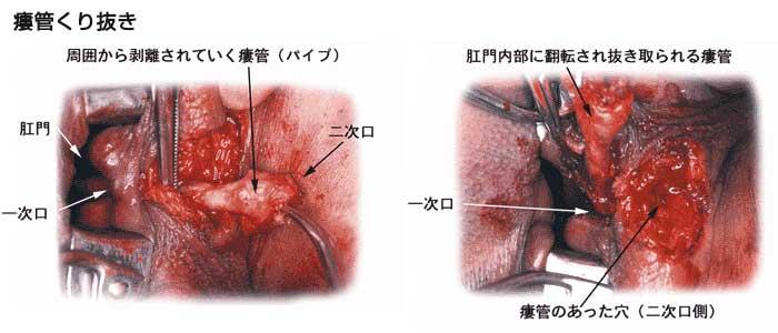痔瘻手術は原則的には完璧に一次孔を解放、切除しておけば同一の痔瘻は再発いたしません。しかし肛門機能の低下を避けるため括約筋温存手術が行われた場合、経過中筋肉